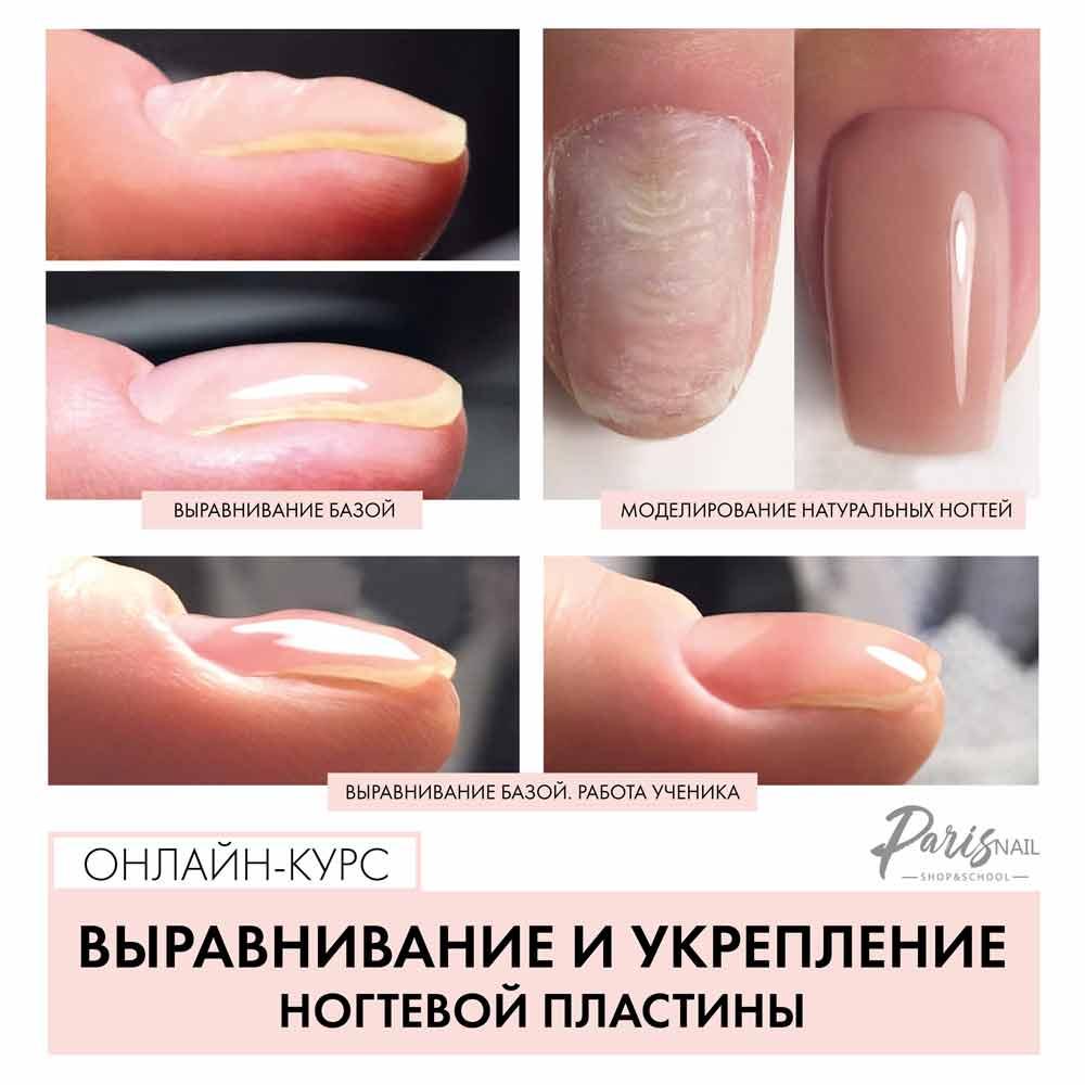 выравнивание ногтевой пластины лечение