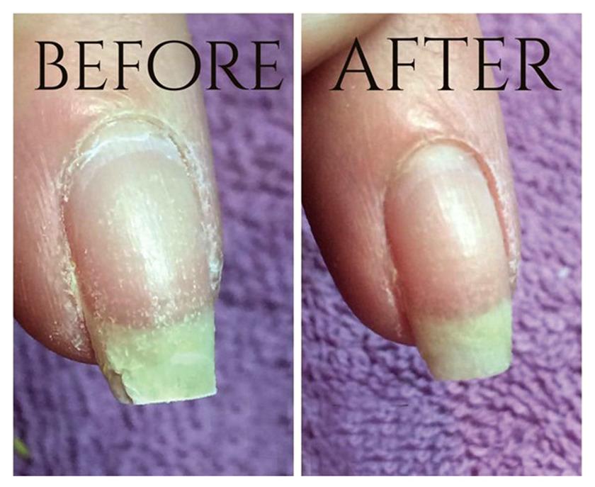 Ногти до и после IBX