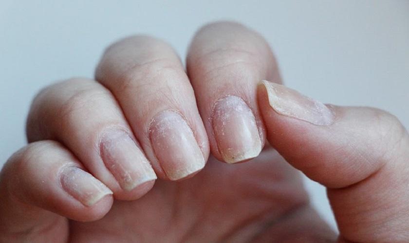 поврежденная ногтевая пластина